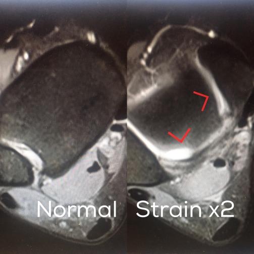 MRI - Calf